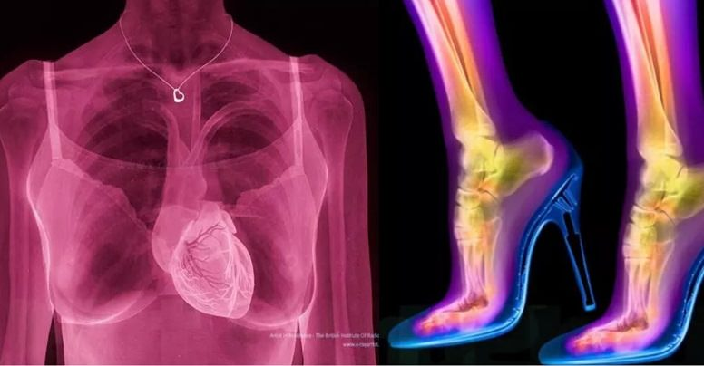 Shocking X-Rays That Will Completely Transform The Way You See The Human Body