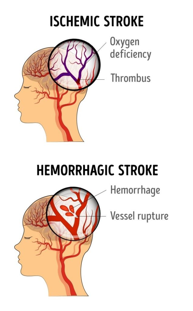 box truck damage diagram stroke damage diagram potential signs of strokes that women need to look for ...