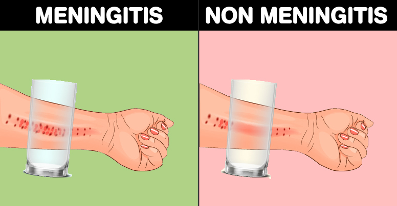 8 Meningitis Symptoms Everyone Should Know About And How To Handle Them